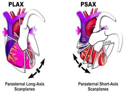 Parasternal Long Axis Views (1 of 4)